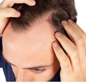 Mit Haarausfall abfinden? Nein: Haartransplantationen in der Türkei schaffen Abhilfe