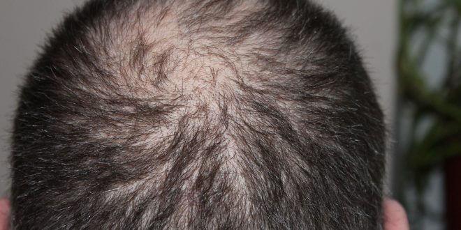 Klinik für Haartransplantation finden: So wichtig sind Erfahrungen bei der Klinikwahl