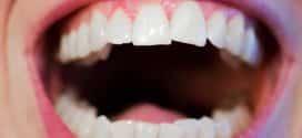 Zahnfleischrückgang: Eine sofortige Behandlung hilft beim Zahnerhalt