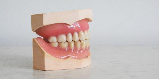 Mit Zahnersatz mehr Lebensqualität erhalten